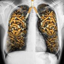 płuca palacza
