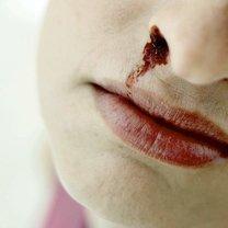 krwawienie z nosa