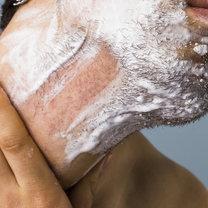 guzy po goleniu