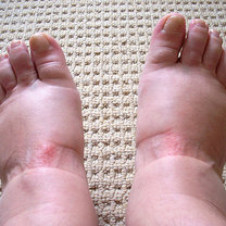 spuchnięte stopy