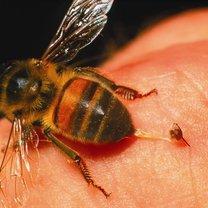 ukaszenie pszczoły