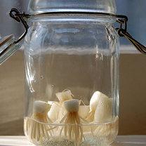 cebulki w słoiku