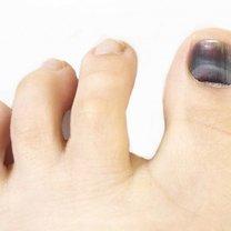 krwiak pod paznokciem leczenie