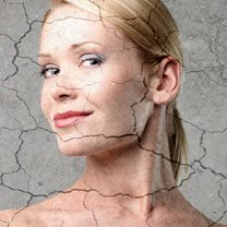 sucha skóra