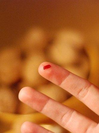 Jak Usunąć Plamę Z Krwi Na Dywanie Porada Tipypl