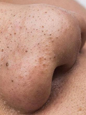 zaskórniki oczyszczanie twarzy