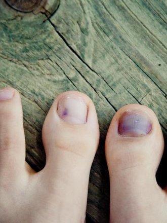 krwiak pod paznokciem