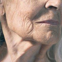 starzenie się