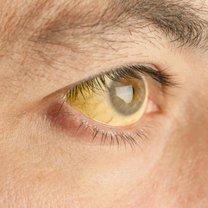 żółte oczy