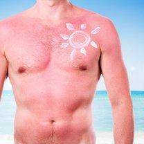 Oparzenia słoneczne są zmorą szczególnie dla posiadaczy jasnej karnacji skóry, bo to te osoby najczęściej...
