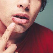 To uciążliwy i nieestetyczny problem skórny, który wywołują zazwyczaj wirusy HSV-1. Gdy raz zaatakuje...