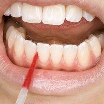 Płytka nazębna - zwana też płytką bakteryjną lub osadem nazębnym - to miękki nalot na zębach...
