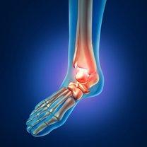 Reumatoidalne zapalenie stawów to jedno z najcięższych schorzeń układu kostnego. Objawia się zazwyczaj...
