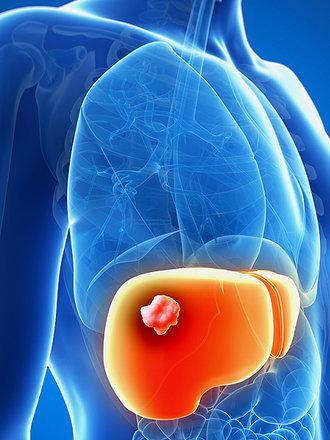 rak wątroby