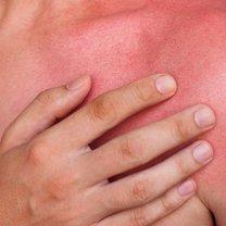 Słońce, choć go uwielbiamy, może nam nieźle zaszkodzić, a w szczególności naszej skórze. Latem...