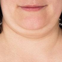 Drugi podbródek to częsty defekt urody, który spędza sen z powiek wielu osób. Zwisający fałd skóry...