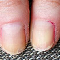 Zadbane dłonie i paznokcie to prawdziwa wizytówka każdego człowieka. Niestety, niezdrowy styl życia...