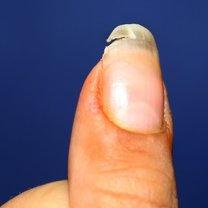 Kruche, miękkie i przede wszystkim nadmiernie rozdwajające się paznokcie to częsty problem natury...