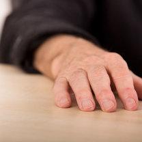 Palce pałeczkowate, czyli pogrubione na końcach, to charakterystyczny objaw wielu schorzeń. W ten sposób...